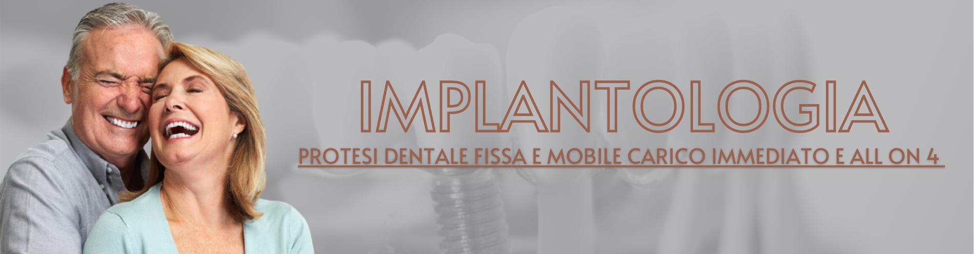 implantologia - impianti dentali